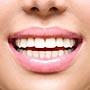 Как сделать белоснежную улыбку без стоматолога