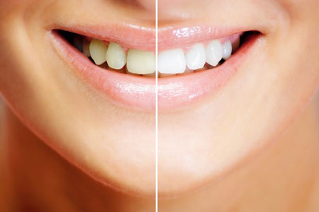 Как бороться с зубным налетом